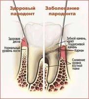 Заболевание пародонта. Лечение пародонтита
