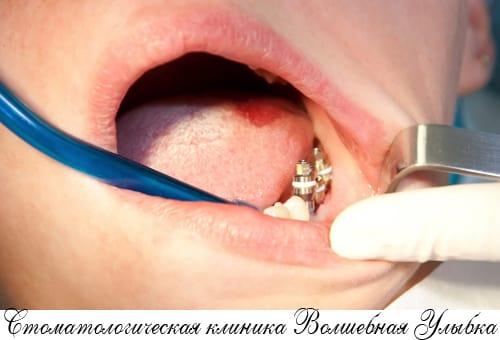 Удаление импланта зуба в Строгио