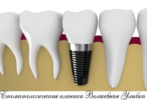разрушенных зубов